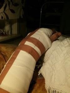 Armen i gips före operatioen