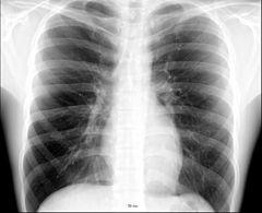 Friska lungor